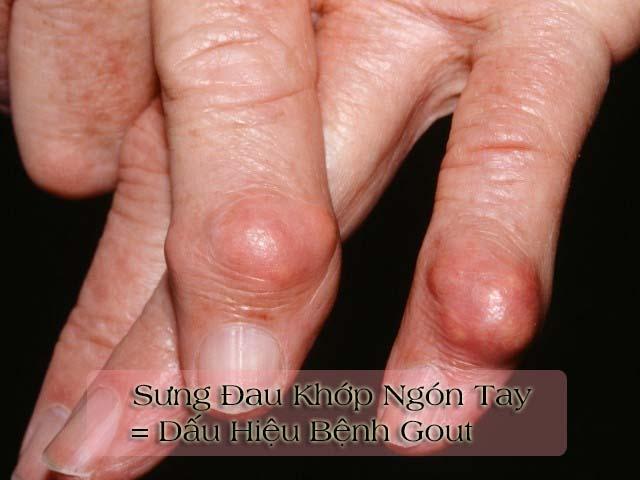 bệnh gout làm sưng đau khớp ngón tay