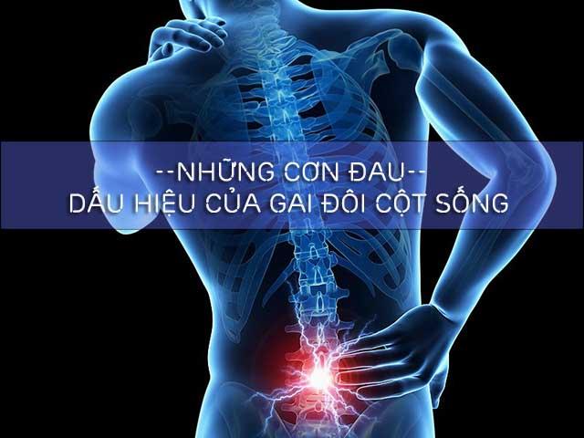 đau là dấu hiệu của gai xương cột sống