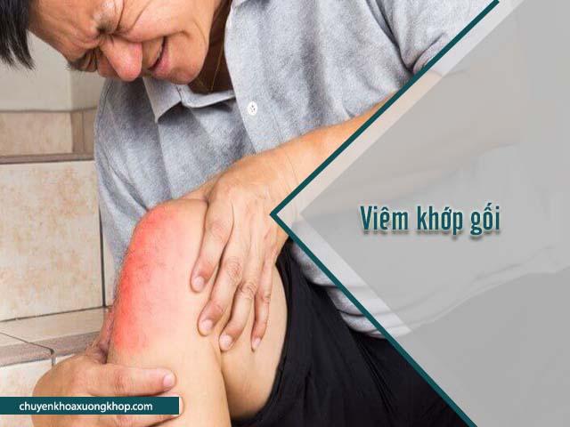 khớp gối kêu lục cục là dấu hiệu của bệnh viêm khớp gối