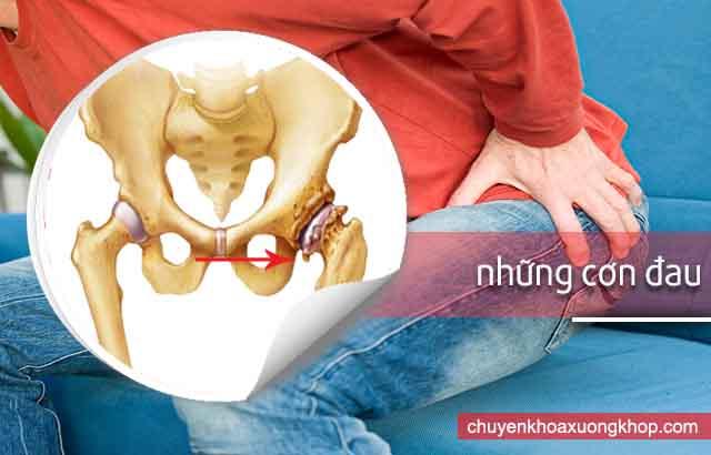 triệu chứng của thoái hóa khớp háng là những cơn đau