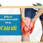 Điều trị thoái hóa xương khớp bằng phương pháp tiêm tế bào gốc