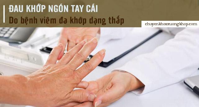nguyên nhân đau khớp ngón tay cái