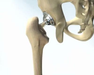 Phẫu thuật thay khớp háng bị thoái hóa nên hay không?