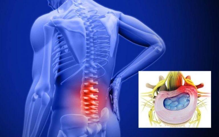 Phồng đĩa đệm nếu không được điều trị sớm sẽ dẫn đến thoát vị