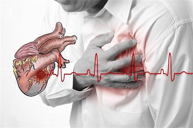 phong thấp gây đau tim