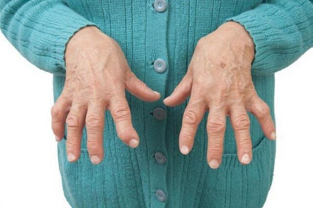 triệu chứng của bệnh phong thấp