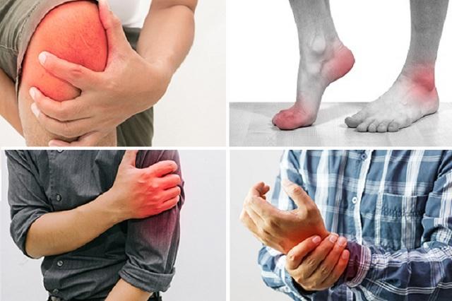cơn đau khớp thường tái phát vào dịp tết