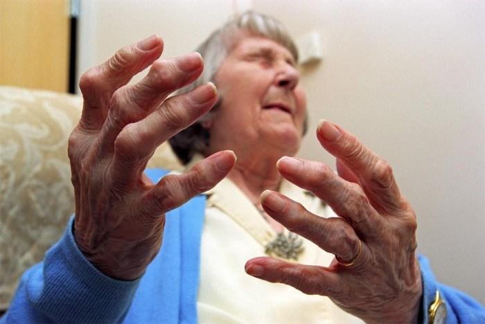 Bệnh viêm đa khớp dạng thấp thường gặp ở người già