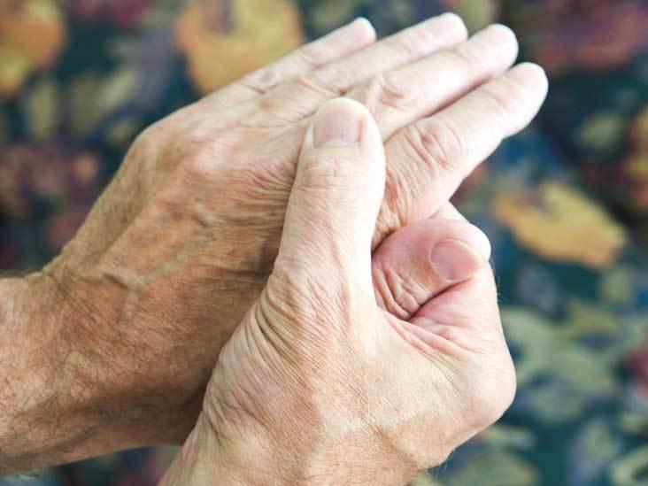 Phác đồ điều trị bệnh viêm đa khớp dạng thấp hiệu quả nhất