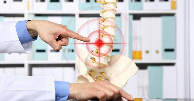 đau thần kinh tọa ở lưng