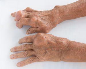 bệnh Gout lây qua những con đường nào