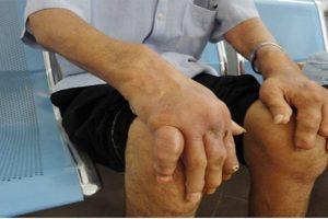 Bệnh Gout mãn tính