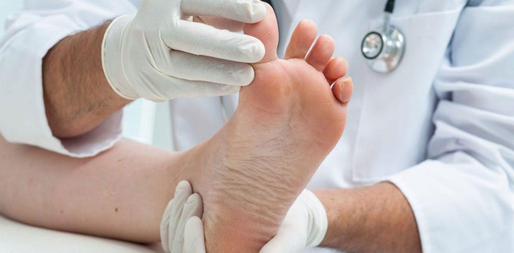 điều trị bệnh Gout mãn tính