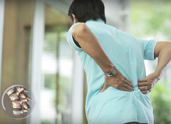 Thoái hóa cột sống là bệnh lý xương khớp phổ biến