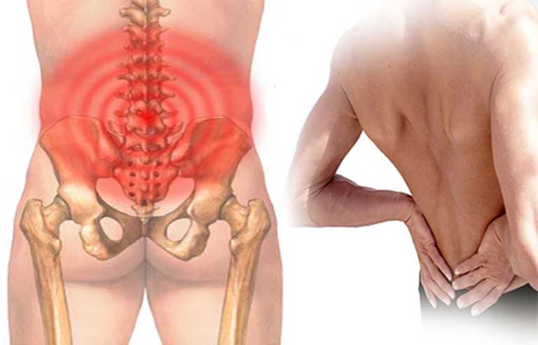 Đau vùng thắt lưng và hông là triệu chứng của bệnh thoát vị đĩa đệm L4 L5