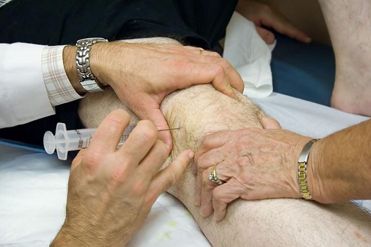 Trường hợp nghiêm trọng có thể buộc phải tiêm thuốc giảm đau ngoài màng cứng